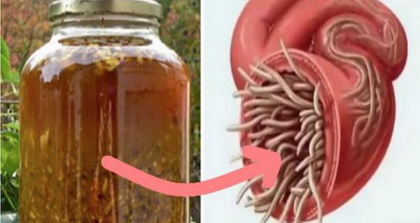 A tökéletes házi készítésű antibiotikum: minden fertőzést, baktériumot, vírust és parazitát kiirt a testedből, még ma készítsd el!