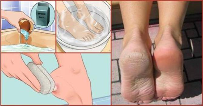 Ne költs pedikűrre! Használd ezt a két összetevőt a konyhádból és varázsold széppé lábaidat!