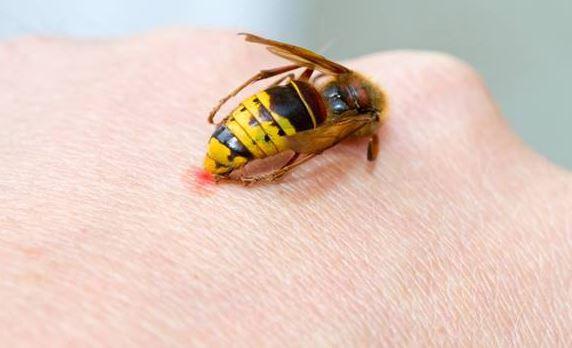 10 azonnali, természetes gyógymód darázscsípés ellen! Mentsd el, hogy kéznél legyen, amikor kell: